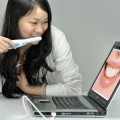 Intraoral Cameras for Treatment and Diagnosis