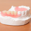 The Pros and Cons of Valplast Dentures